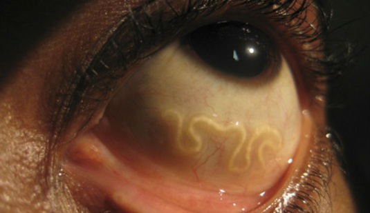 pork tapeworm in eye